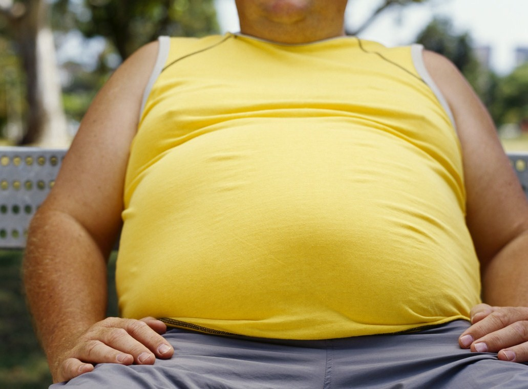 Obesity is increasing around the World